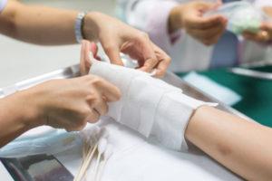 Legal advice for burn injury at Scher, Bassett & Hames