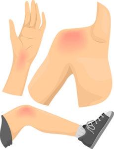 knee, shoulder, and wrist injuries